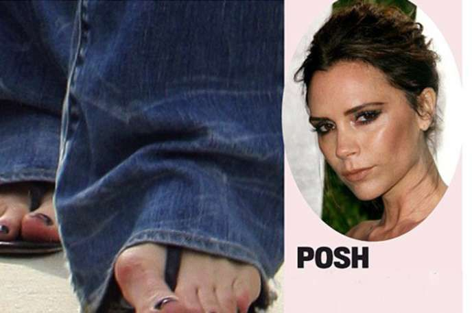 10 Celebs Who Probably Shouldnt Wear Sandals Answerscom See Im - 10-celebrities-without-makeup-answers