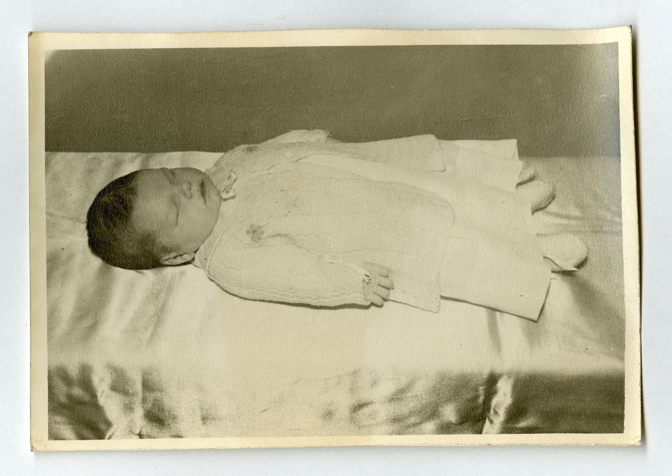 Postmortem of an baby who d 8 days after birth