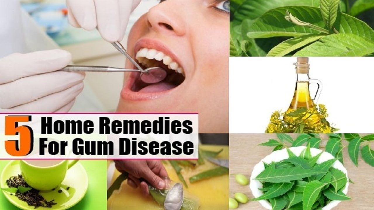 5 ways to treat gum disease naturally gingivitis or