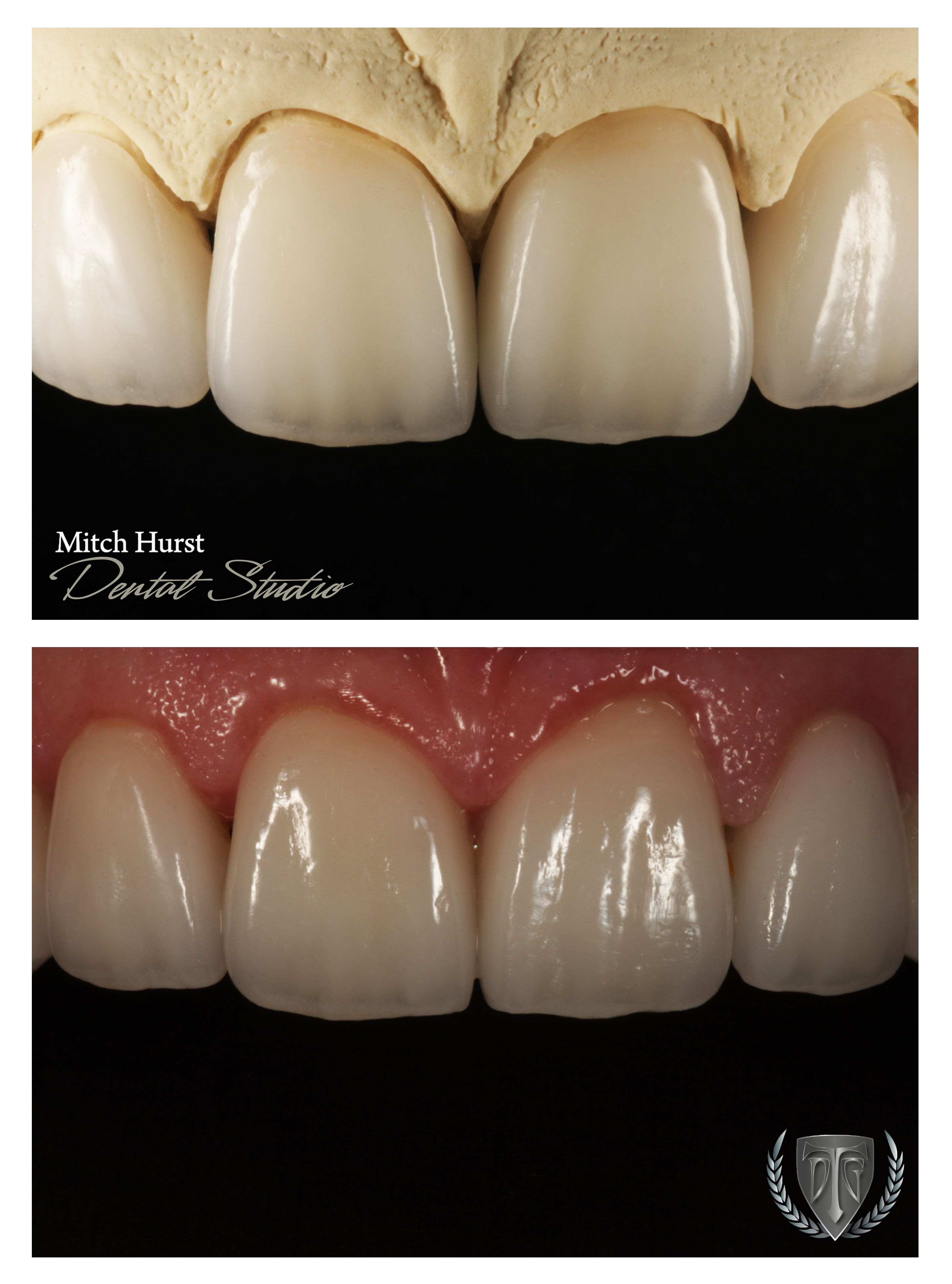 smile makeover, before and after, dental, cosmetic, beautiful ...