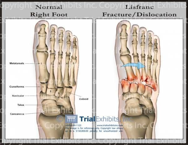 Lisfranc Fracture | studying.... | Pinterest | Lisfranc injury, Acl ...