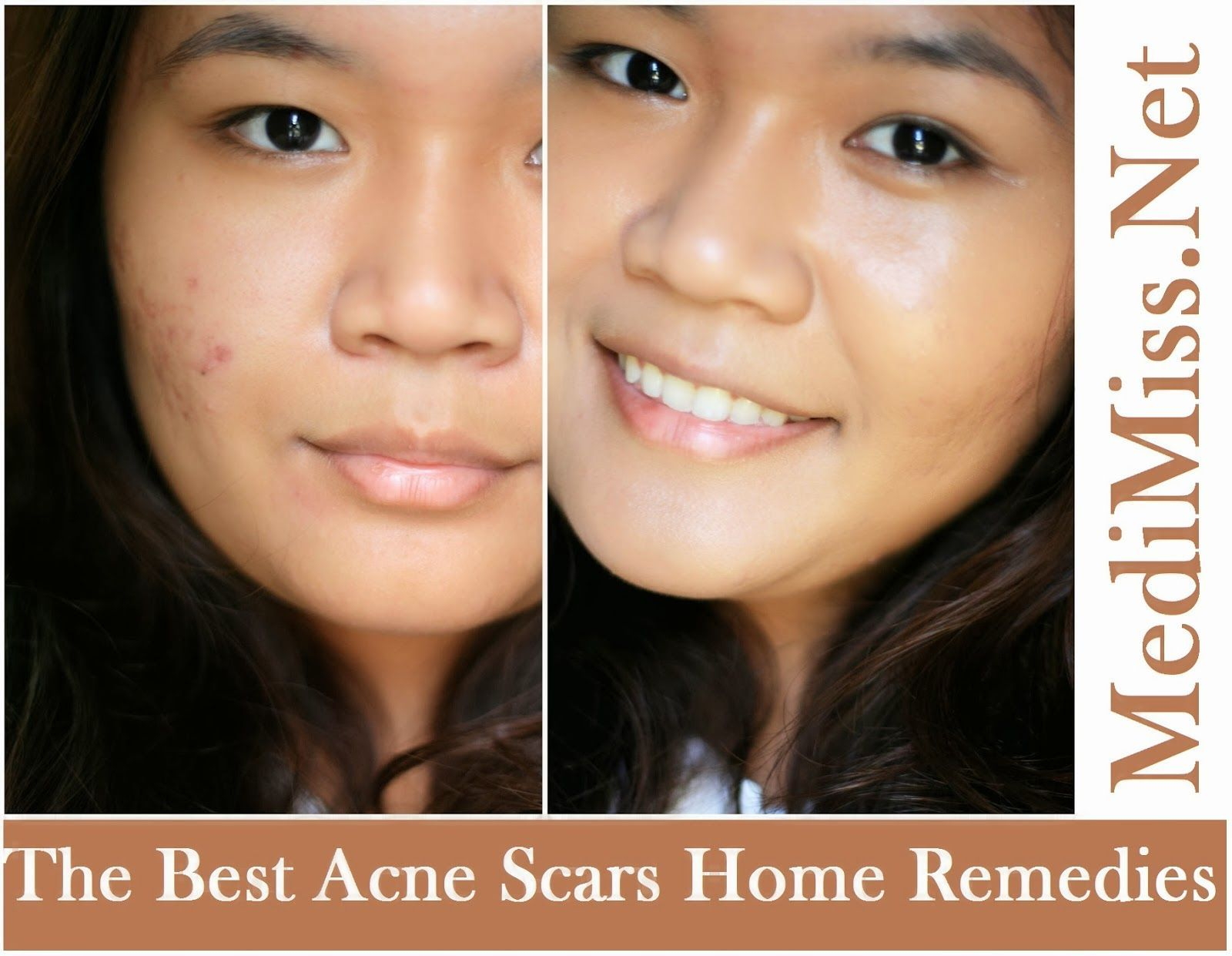 Best Home Remedies For Clear Skin
