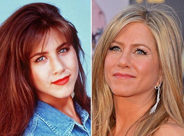 Jennifer Aniston Nose Job Before After Nase Think