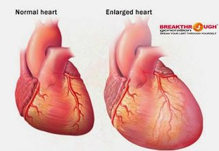 Normal And Diseased Heart Valves Heart Valves Cardiology