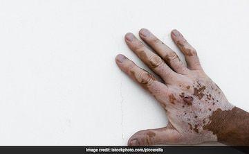 World Vitiligo Day: 10 Effective Home Remedies To Treat Vitiligo
