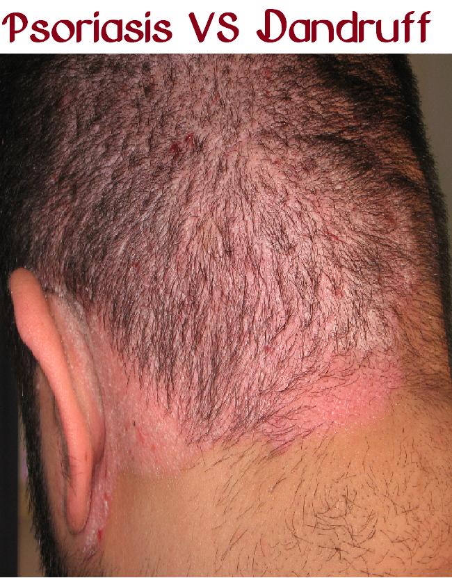 f45ba50015095f5bedc40fb51936aa09 - How To Get Rid Of Red Spots On Scalp