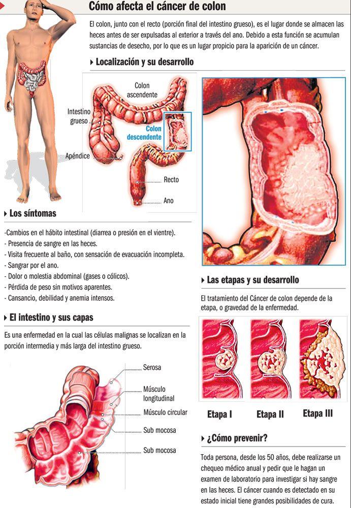 viermi la copii simptome și tratament papillomavirus amygdales