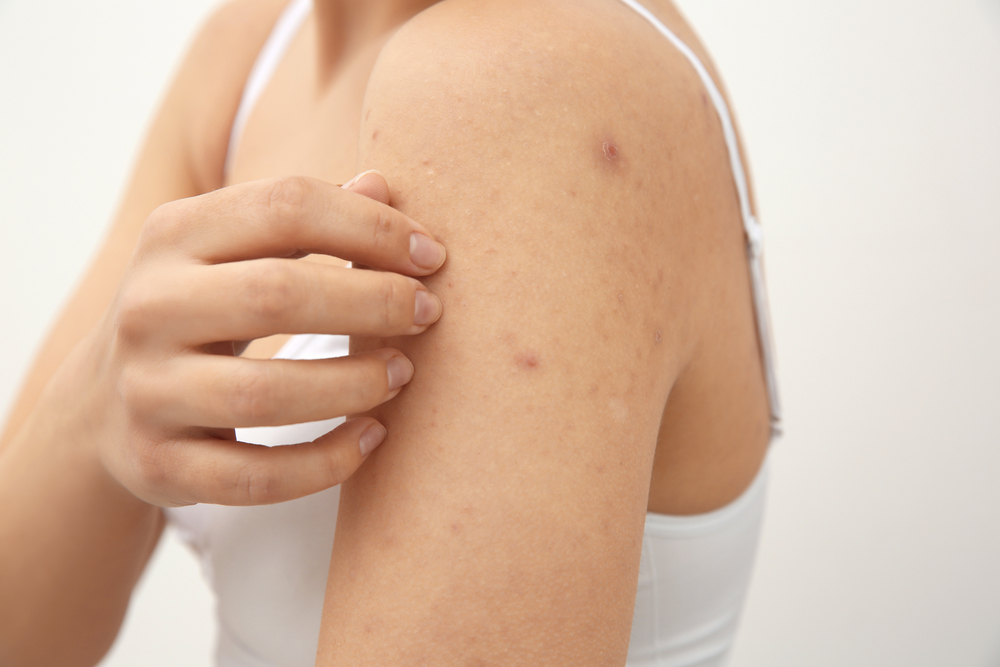 f45e2008c2fe4afebdc01221dabcf4ba - How To Get Rid Of Scabies In 24 Hours