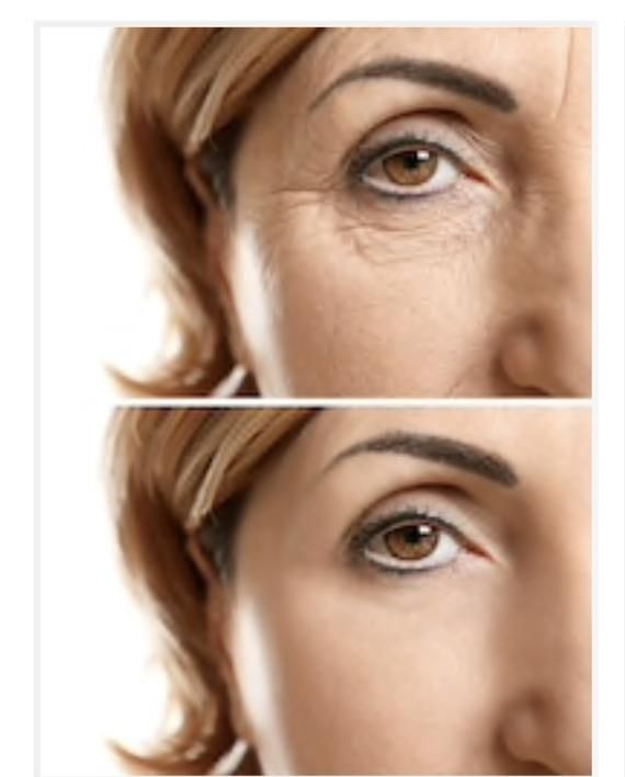 Anti-Wrinkle Silicone Eye Pad - Anti Aging Collage