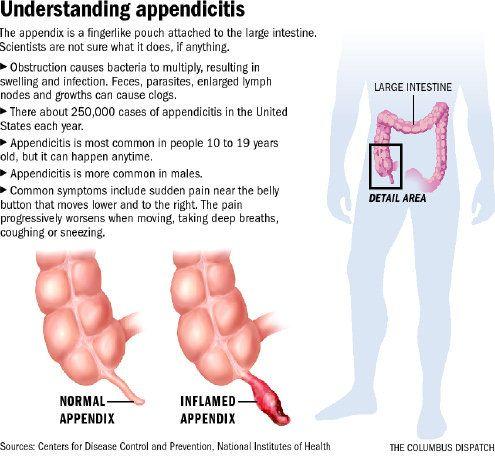 burst appendix - google search | appendix | pinterest | medical, Human Body