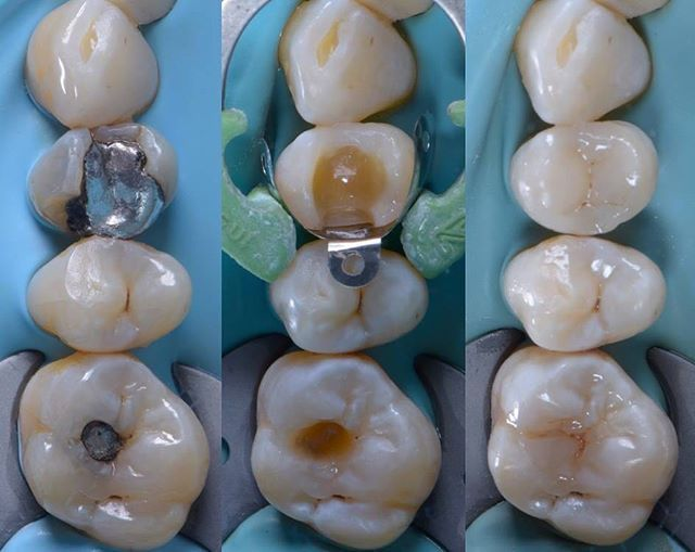 Recreating Nature With Direct 2 Shade Composite Custom Build Up Technique Notice The Little Symmetrical Dip On Dental Fillings Dental Restoration Dentistry