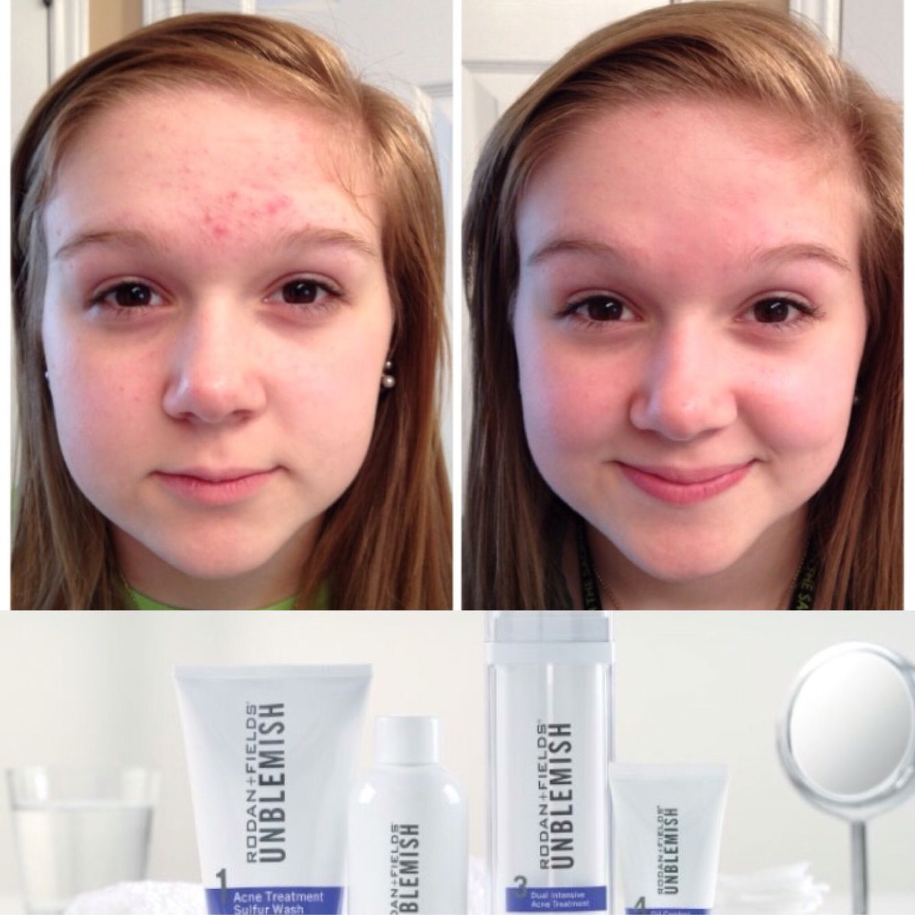 Acne Care For Kids Unblemish By Rodan And Fields 1 Acne Regimen Teenage Acne Tween Best Acne Products