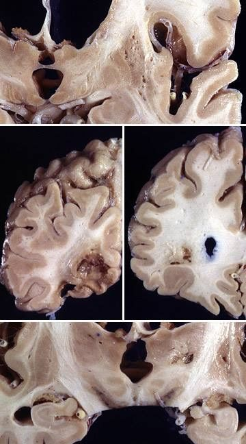 This Is A Case Of Multi Infarct Dementia Mid Which Can Cause A