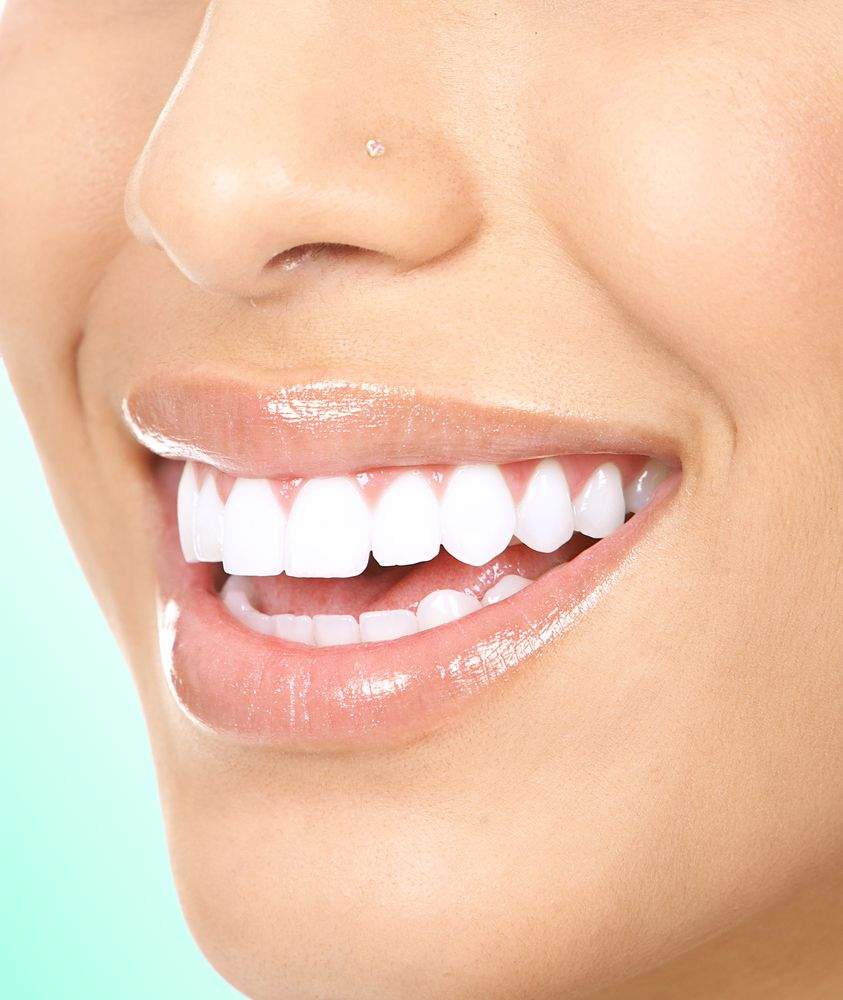NATURAL TEETH WHITENING Donut spend tons of  This trick is an