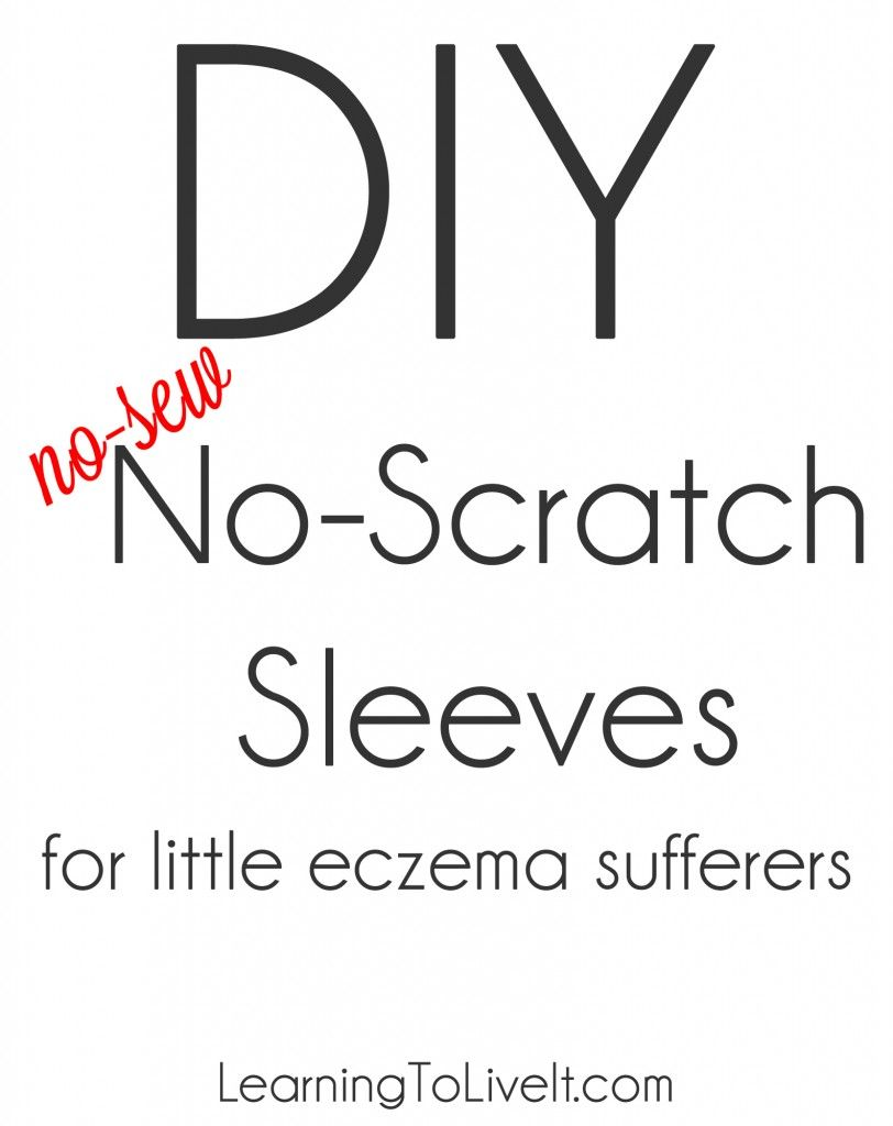 Diy No Scratch Sleeves Gloves For Toddlers With Severe Eczema