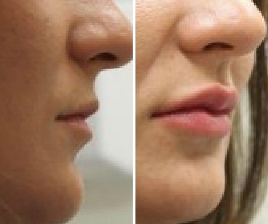 Photo of Lip Fillers Before And After Uk #cost #fillers #lip #lips fillers #lips kiss #li…