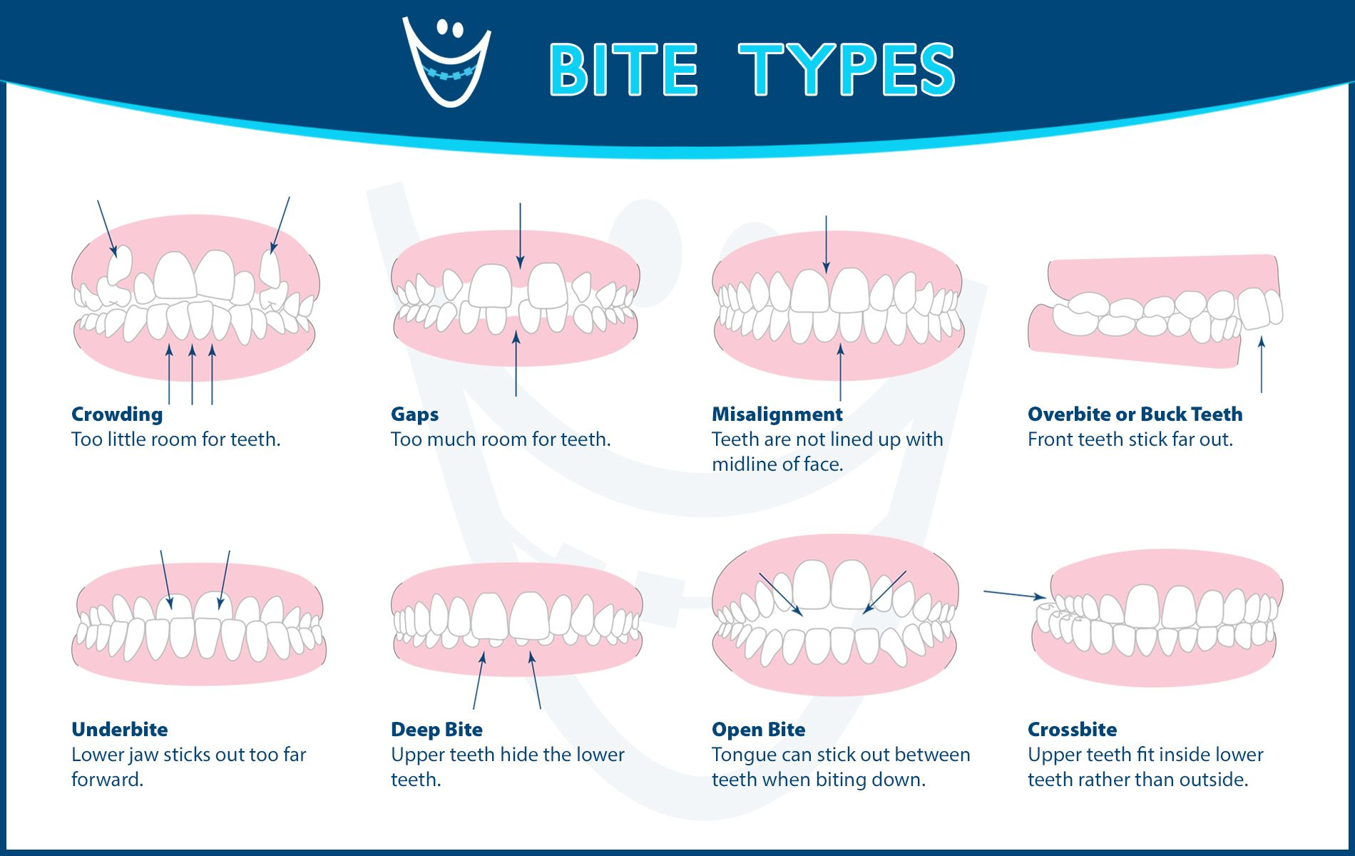 Understanding The Different Types Of Bites
