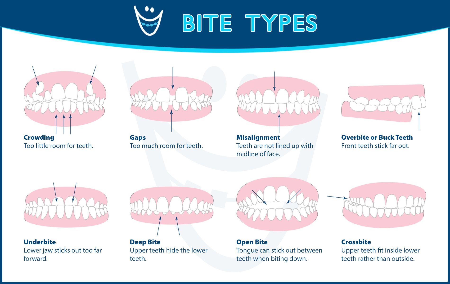 Understanding The Different Types Of Bites