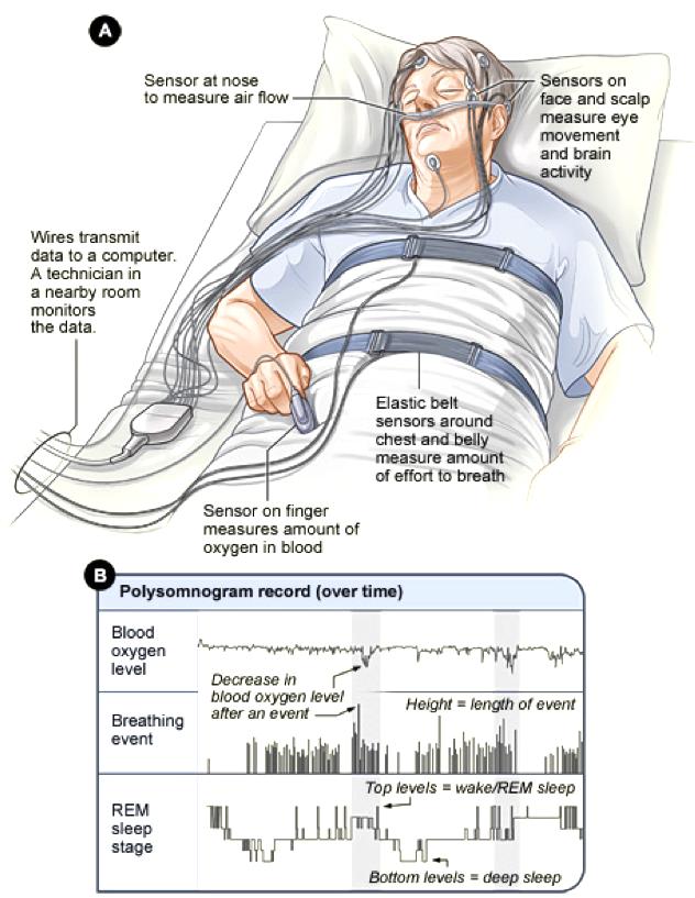 Sleep Apnea Testing  Sleep Apnea  Osos