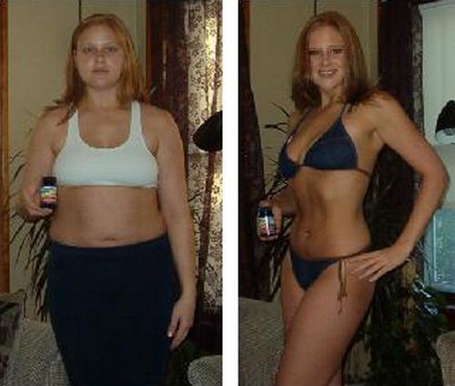 Похудела При Гипотиреозе. Как похудеть при гипотиреозе: советы эндокринолога и отзывы