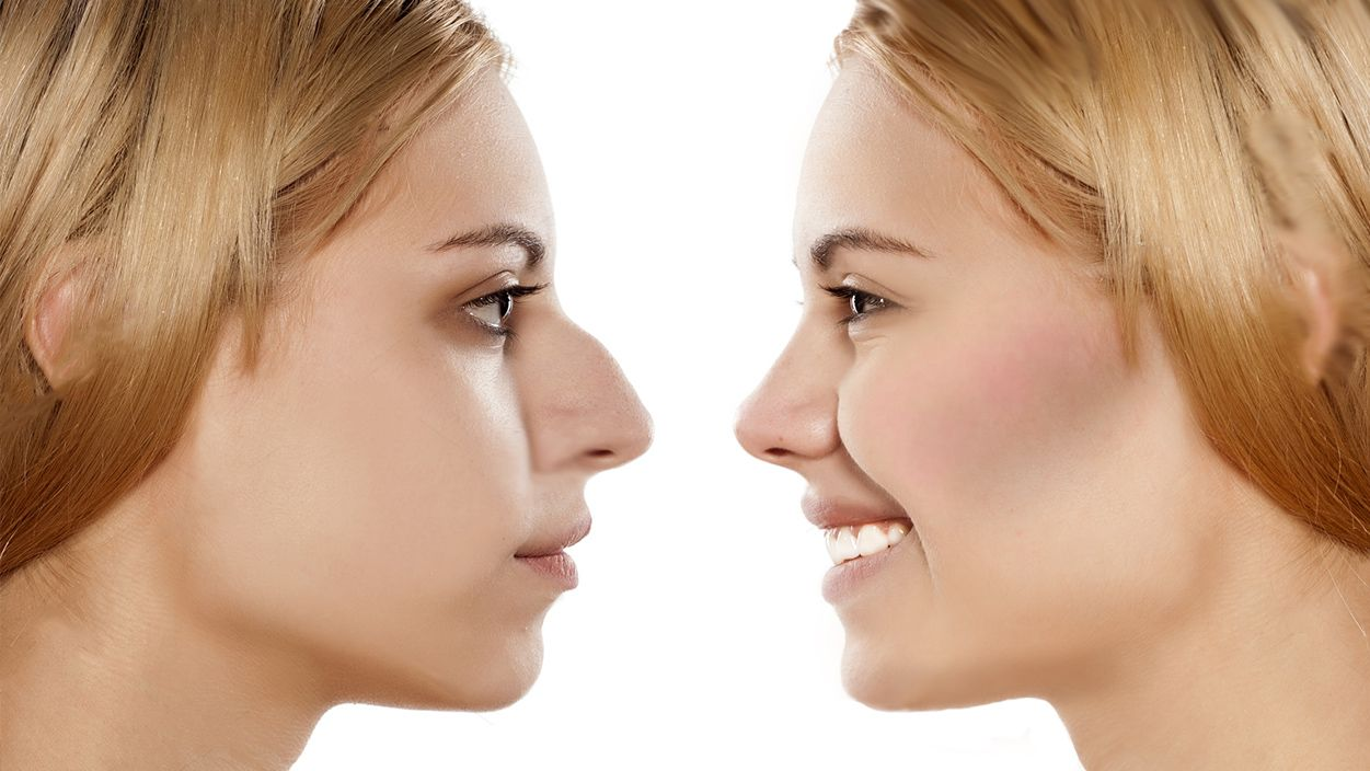 Guide To Rhinoplasty Recovery Time Cosmeticsurgery Plasticsurgery Nose Reshaping Rhinoplasty Plastic And Reconstructive Surgery