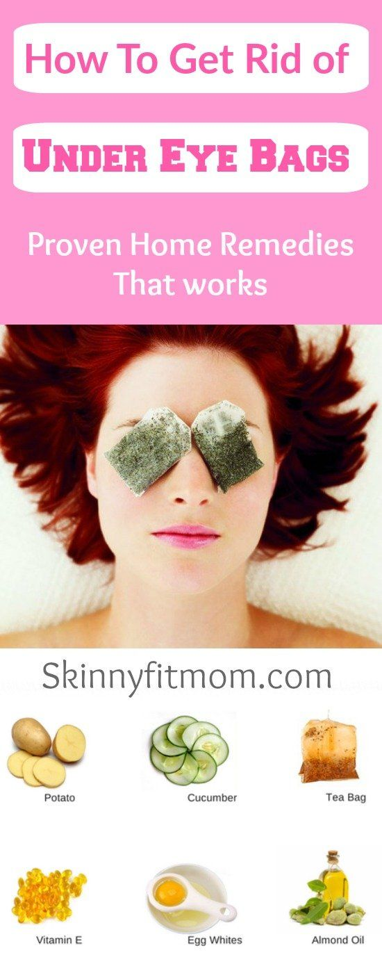 how to get rid of eye infection home remedies