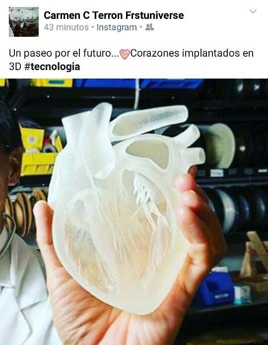 Implantes artificiales #tecnologia