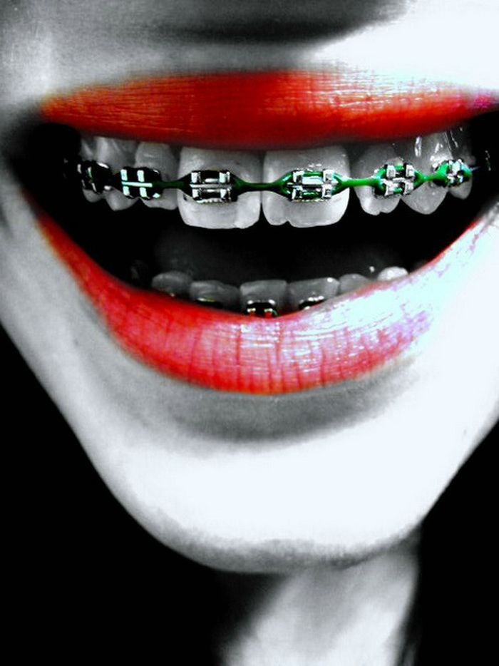 Christmas Braces Ideas.Green Braces Colours Braceface Braces Colors Teeth