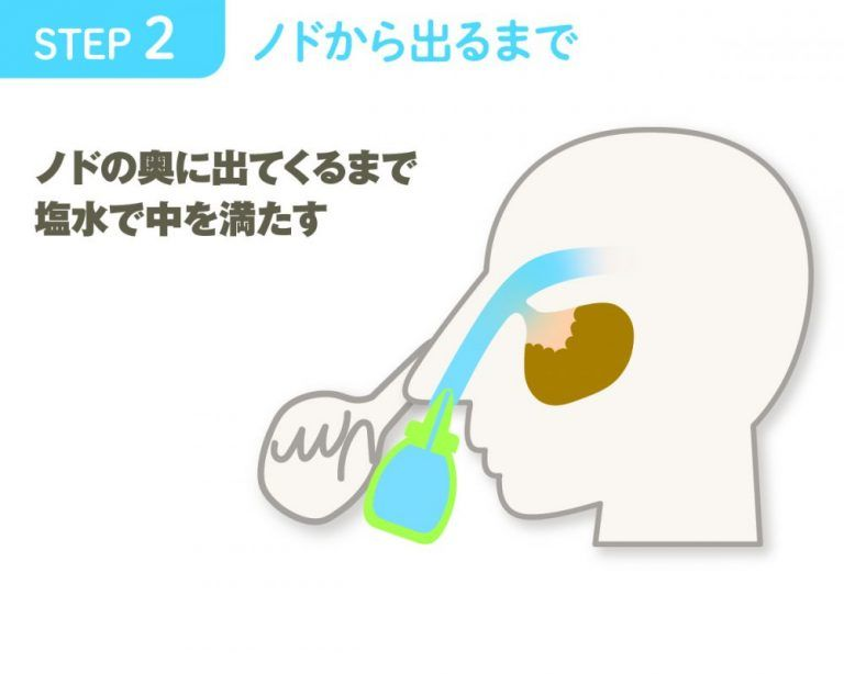 炎 鼻腔 うがい 鼻 副