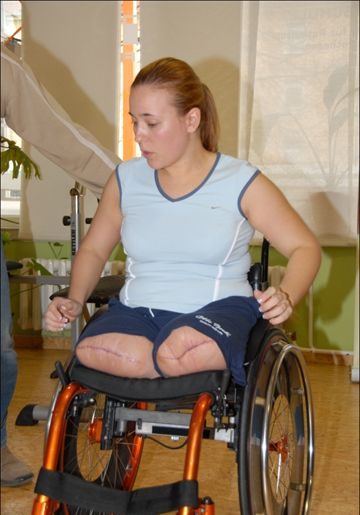 Spinal cord injury alberta