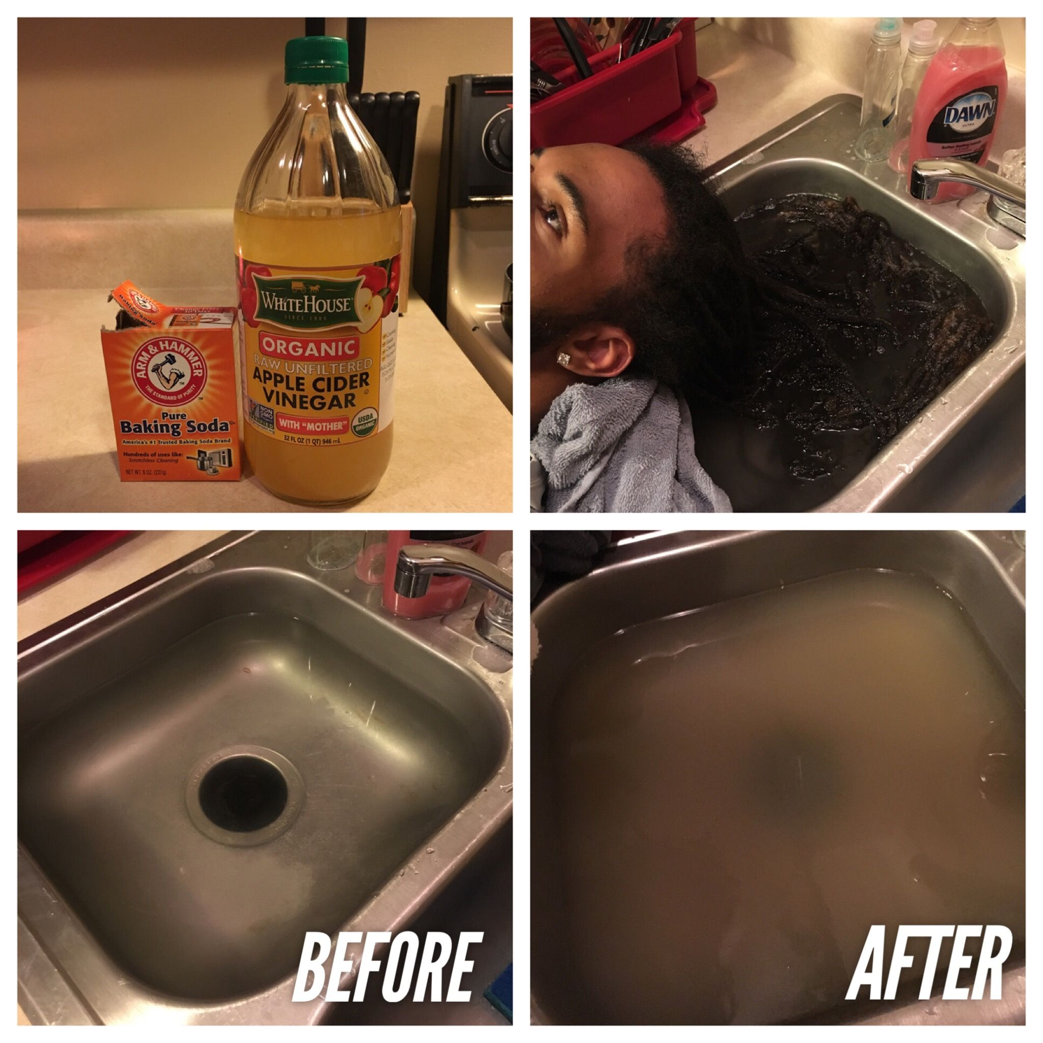 Dread Detox Pour 14 Pure Baking Soda And 34 Cup