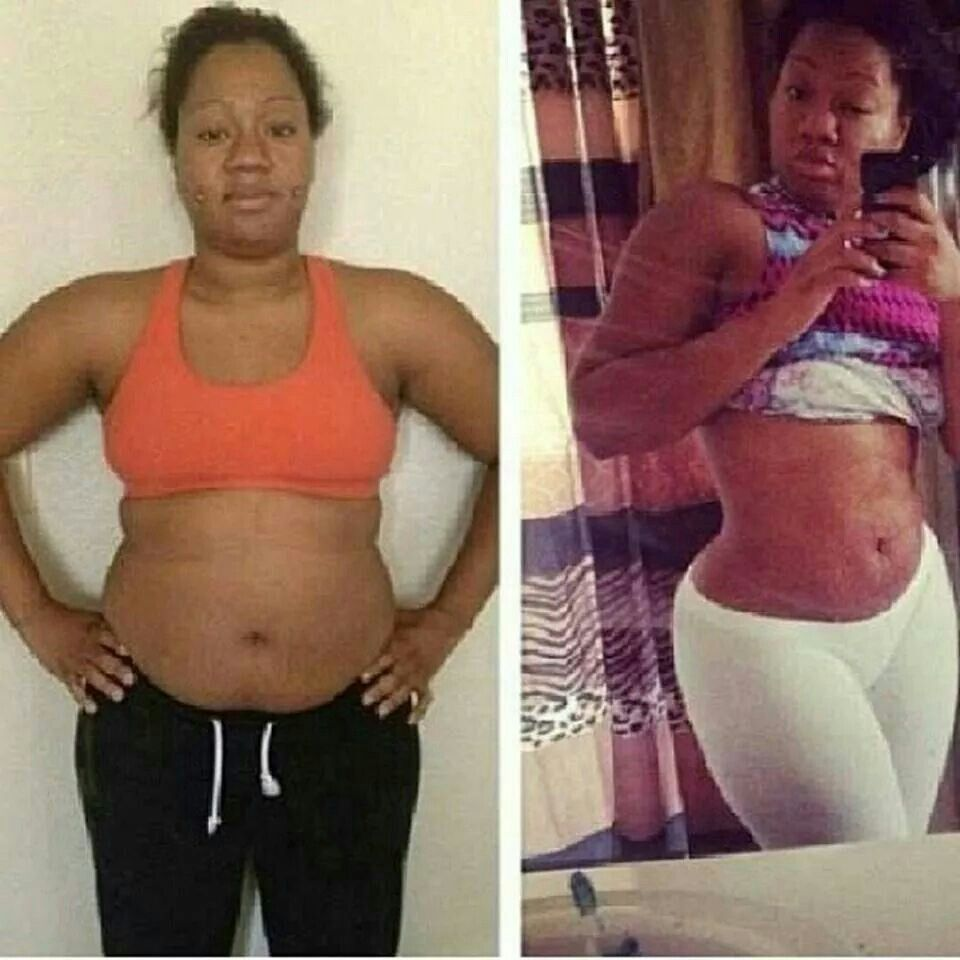 Unexplained Hair Loss And Weight Gain