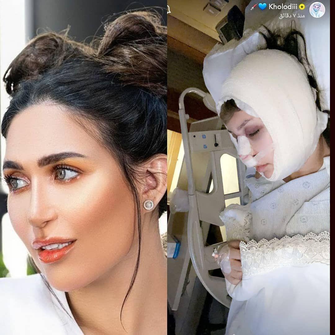 الدكتورة خلود بأول ظهور لها بعد عملية تجميل الأنف والجمهور لم يتعرف عليها Earrings Hoop Earrings Jewelry