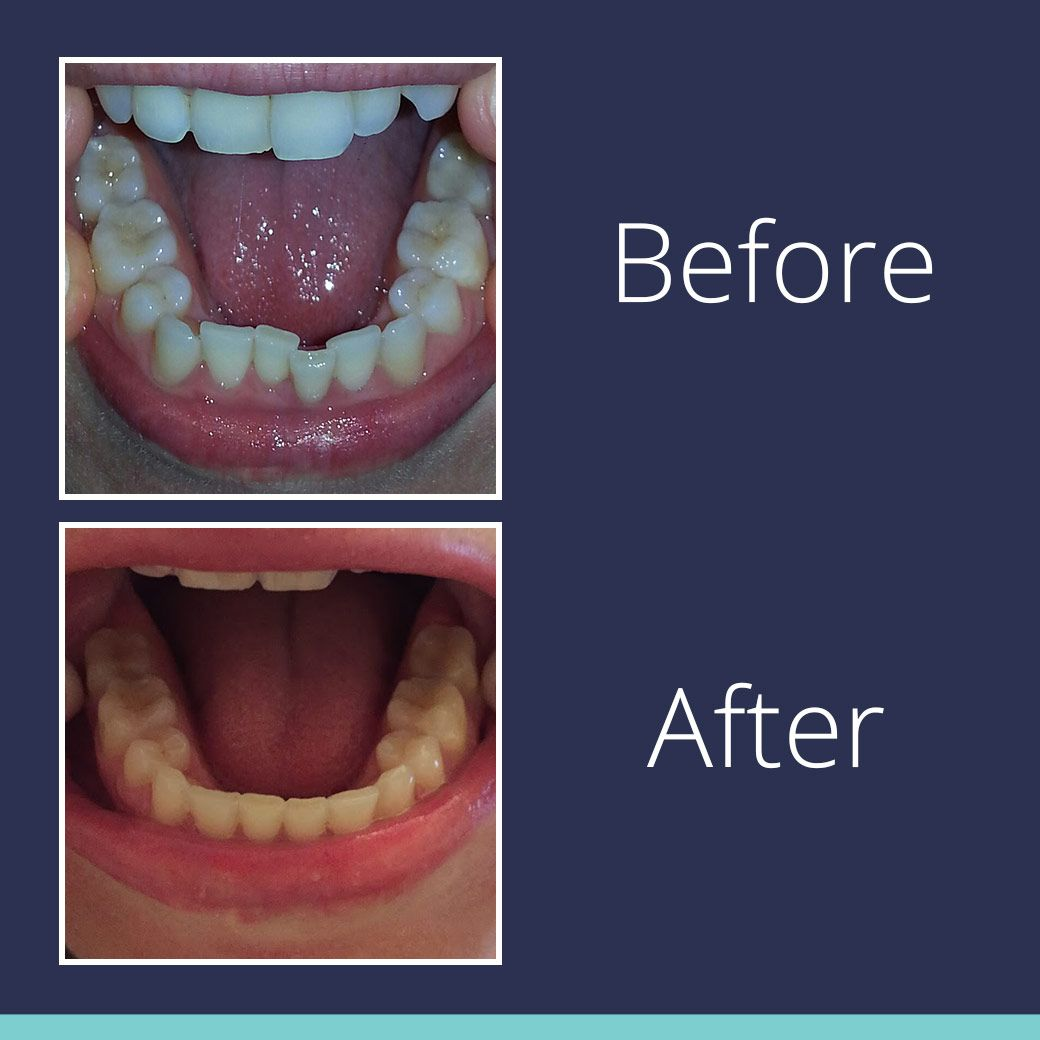 Smile Direct Club  Clear Aligners Size