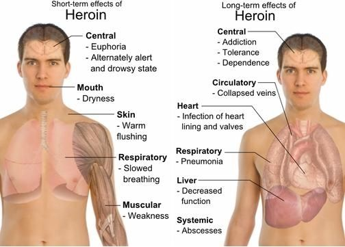 the negative effects of heroin Users who inject heroin can suffer many negative health effects related to infections that develop due to the use of non-sterile injection techniques heroin is a highly addictive drug in the opioid family, with some users reporting a craving after just one hit.