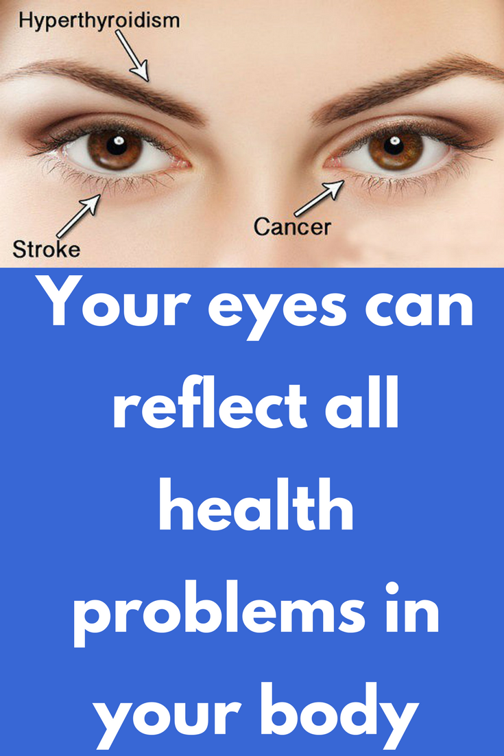Your Eyes Can Reflect All Health Problems In Your Body Health Tips