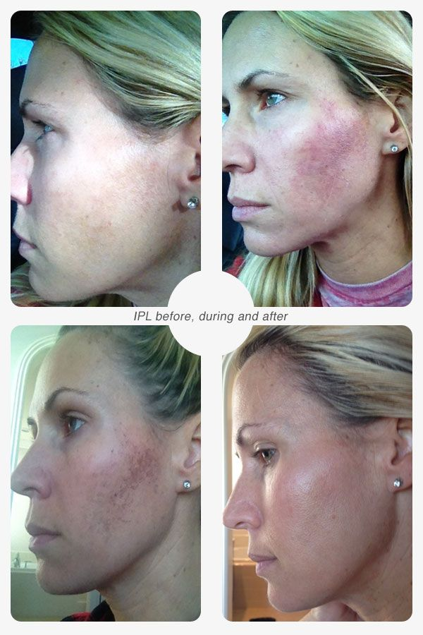 Why I Love IPL or Photo Facials and YOU Will Too! #beauty