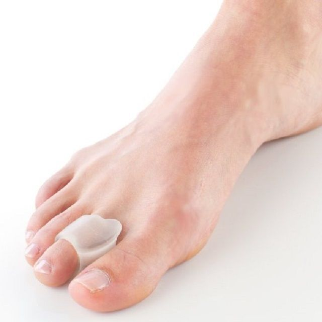 27+ What is a toe bunion inspirations