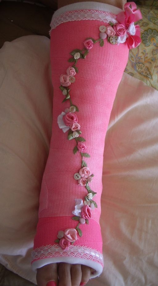 decorated cast - Google Search | Air cast decorations ...