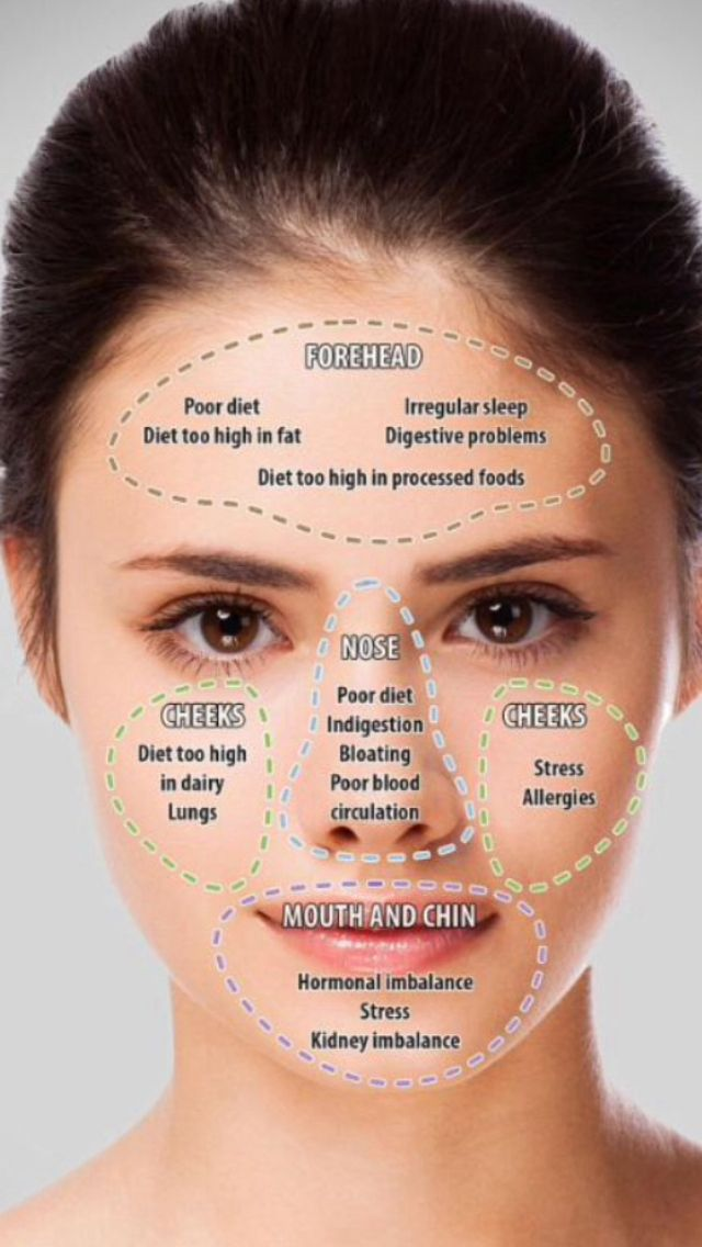 Acne chart beauty in 2018 pinterest skin care face mapping
