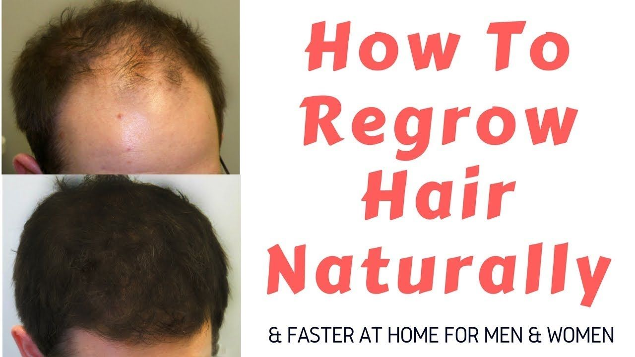 How to regrow hair naturally How to regrow hair naturally new foto