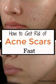 how to remove red acne marks fast