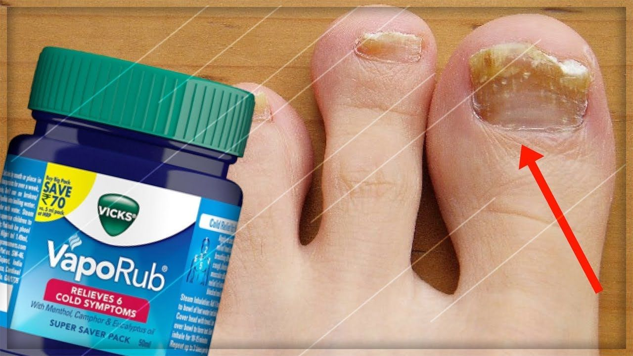 GETTING RID OF TOENAIL FUNGUS WITH VICKS VAPOR RUB