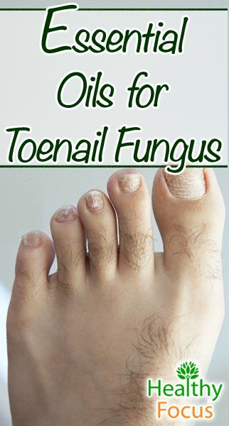 Essential Oils for Toenail Fungus include Tea tree, Thyme, Manuka, Oregano, Clove, Cinnamon and Lavender. Coconut oil can be used as a carrier.
