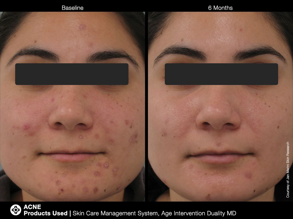 Acne products used skin care management system and age