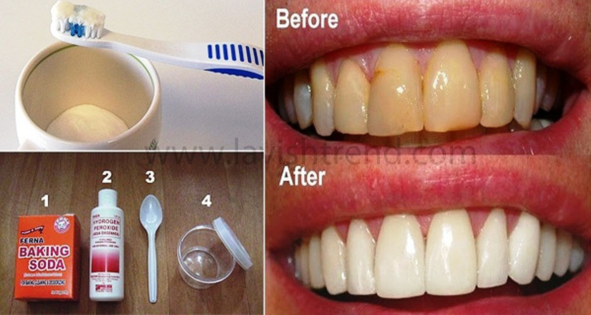 Plaque And Gum Disease Are Common Dental Problems If You Want To Save Your Time