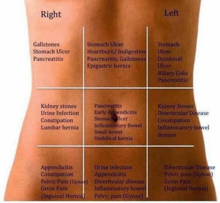 Know your abdominal pain | Health Info | Pinterest ...