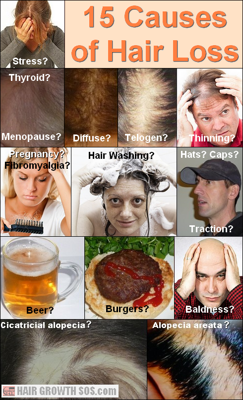 15 Causes Of Hair Loss Why Is Your Hair Falling Out Hair Loss Help Hair Loss Stress Hair Loss