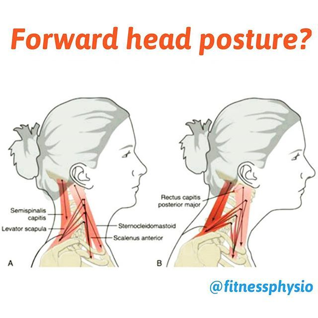 36++ Forward head posture neck muscles inspirations