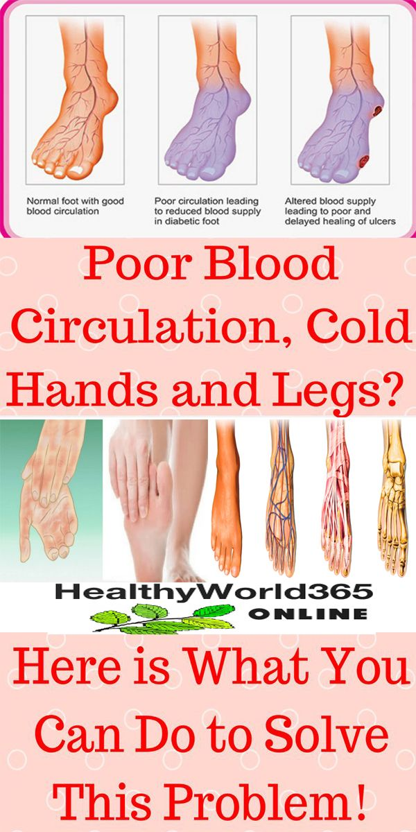 treatment for poor circulation in legs